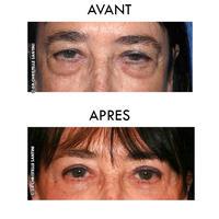 Docteur Santini Chirurgien esthétique Paris